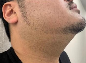 男性のヒゲ脱毛before